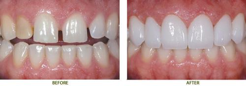 Bọc răng sứ ở đâu vừa đẹp vừa rẻ ???