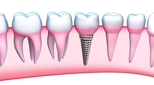 cam-ghep-implant10